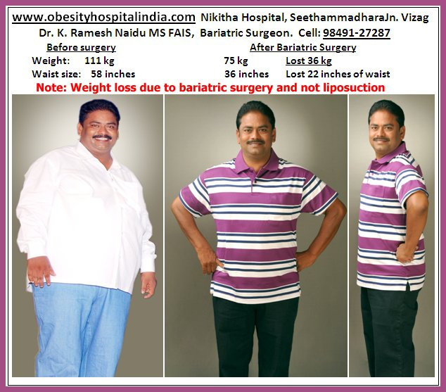 How do i lose weight in my stomach and hips image 1